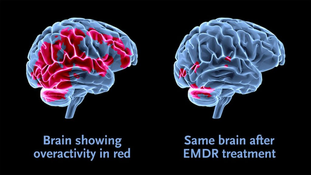 EDMR is used by inpatient drug rehabs Fort Lauderdale, Florida